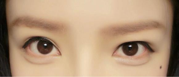 双眼皮贴用久了眼睛会变双眼皮吗